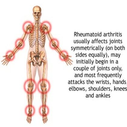 How to Use Occupational Therapy To Treat Arthritis