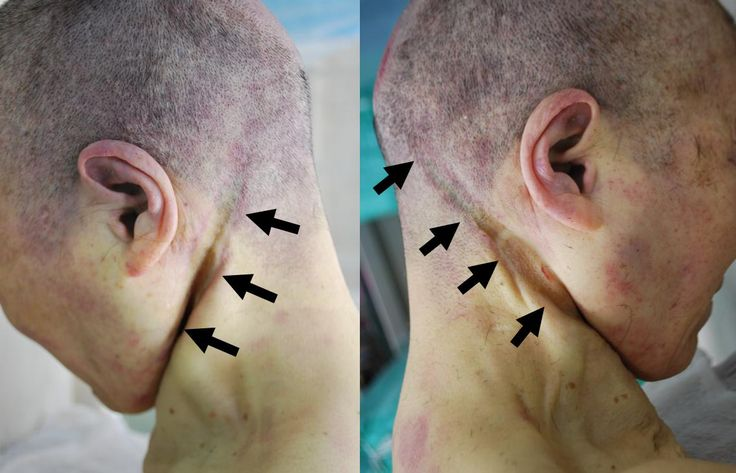475 best forensic fun images on pinterest forensics forensic fig 1 autopsy the ligature mark is bilaterally symmetric and upward slope towards fandeluxe Gallery
