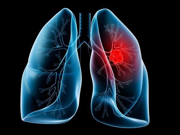 Cuáles son los síntomas del cáncer de pulmón?