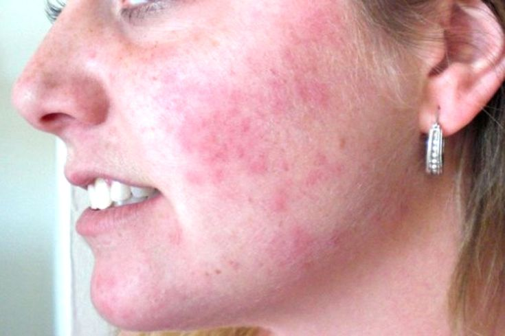What Rashes On Your Face Have To Tell You About Your Health - http://www.wholesomehealthtips.com/what-rashes-on-your-face-have-to-tell-you-about-your-health/ #health #diet #fitness #LoseWeight #workout #happiness