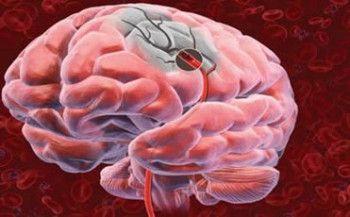 28ª PUBLICACIÓN: Isquemia cerebral, investigación en ratas. Gracias al modelo experimental de isquemia cerebral en ratas, varios grupos de investigación en el mundo han logrado adelantar estudios sobre los mecanismos de lesión neuronal y generar nuevas hipótesis sobre los procesos neurodegenerativos cerebrales en humanos.  Referencia: Cassiani, C. y Borrero, M. (2013). Isquemia cerebral experimental y sus aplicaciones en la investigación en neurociencias. Salud Uninorte, 29 (3), 430-440.