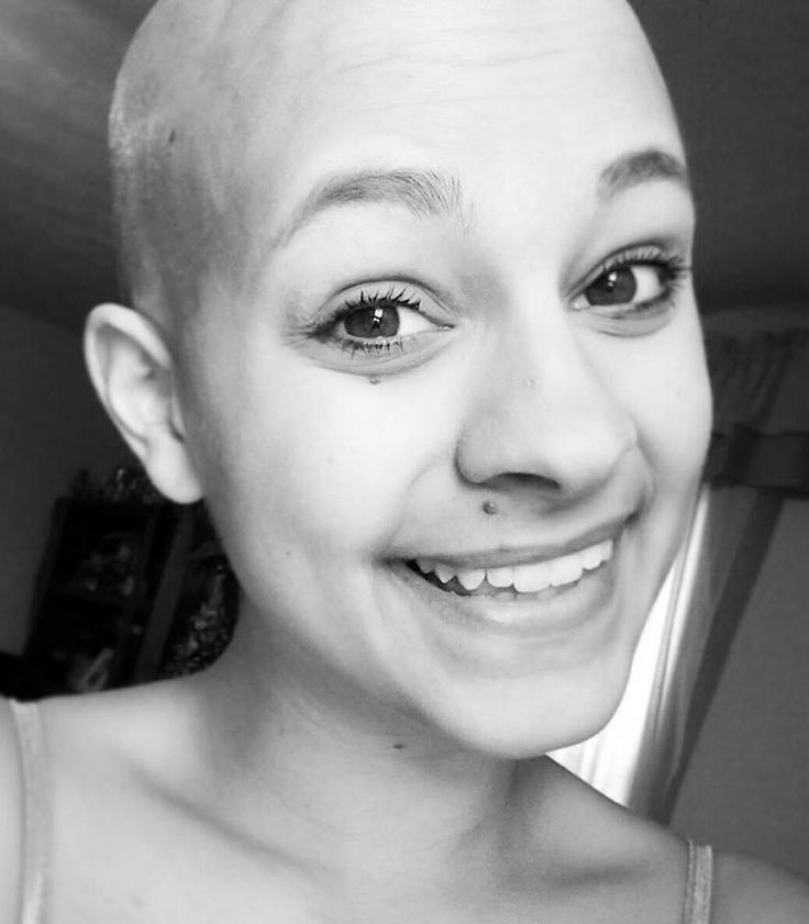 My sister died of cancer last year. Despite her disease she always had a smile on her face. I think she's beautiful. - Imgur