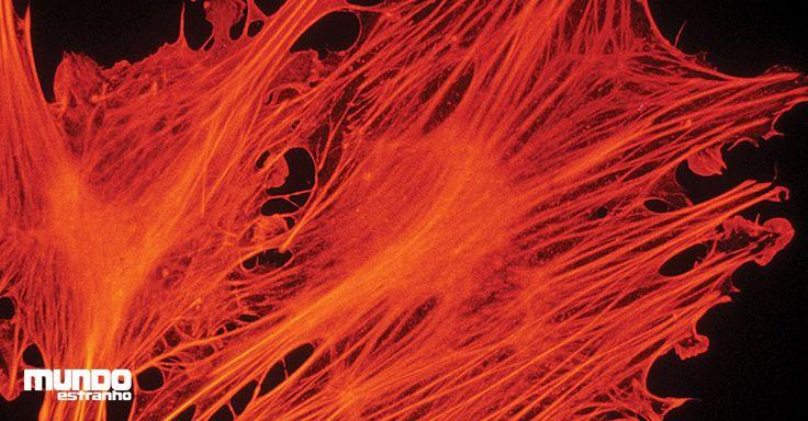 Você consegue adivinhar o que mostram essas fotos microscópicas?