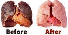 Dieses Hausmittel befreit deine Lunge von schädlichen Giftstoffen!