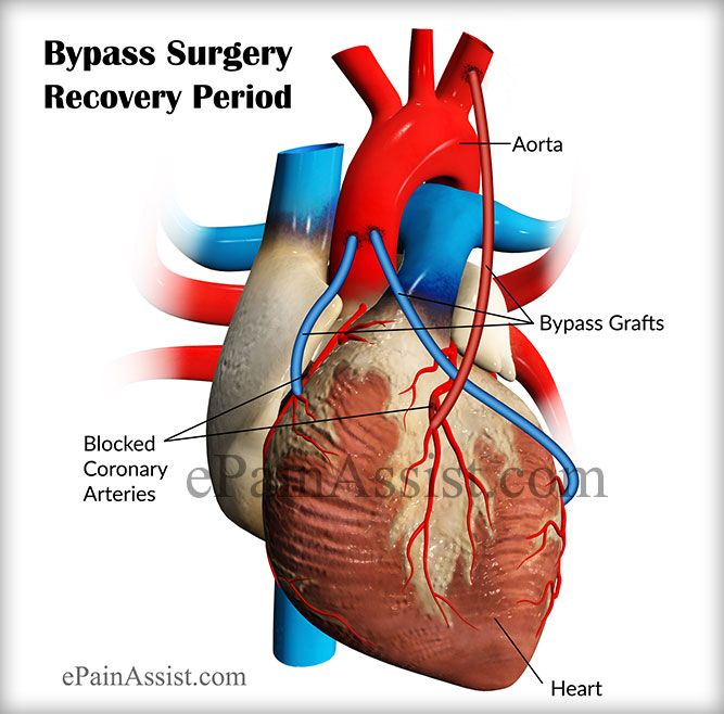 Bypass surgery recovery period depends on individual's prior health condition and age and everyone recovers from bypass surgery in their own speed and it generally takes time. One will be able to sit on a chair just after a day, able to walk more or less after 3 days & walk on the stairs after a week. The bypass surgery recovery period in general is inside twelve weeks of time. Know what is bypass surgery, its recovery period and what to expect after a bypass surgery.