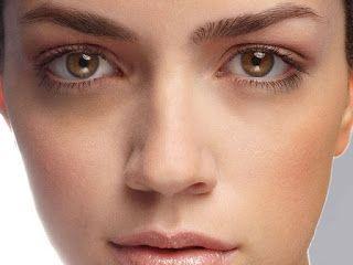 Modaemgeral: Olheiras conheça os tipos, causas e tratamentos!