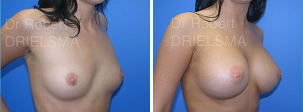 Gallery procedure shown above: Bilateral Breast Augmentation Mammoplasty  Meet Bondi Plastic Surgeon, Dr Robert Drielsma. With over 25 years experience as a surgeon, we sat down with him to find...
