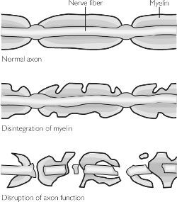 A demyelinating disease is any disease of the nervous system in which the myelin sheath of neurons is damaged. Myelin sheath is a covering just like an insulating layer on the electrical wires.   This impairs the conduction of signals in the affected nerves, causing impairment in sensation, movement, cognition, or other functions depending on which nerves are involved, just like the naked electrical wires can cause generation of electric currents, shock and short circuit.