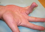 Dupuytren'sContracture  What is Dupuytren'scontracture?