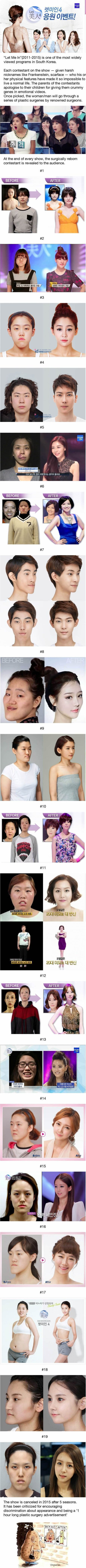 #Korean #photos #Plastic #Surgery #koreanskin #k
