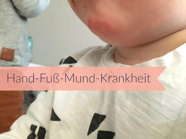 Hand Fuß Mund Krankheit - Mehr Infos auf https://mamaskind.de.