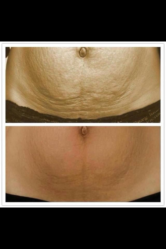 Have problem skin? Nerium AD is your answer! Want to know more? Go to my page Mayaquoia.nerium.com or email me at maya.realresults@gmail
