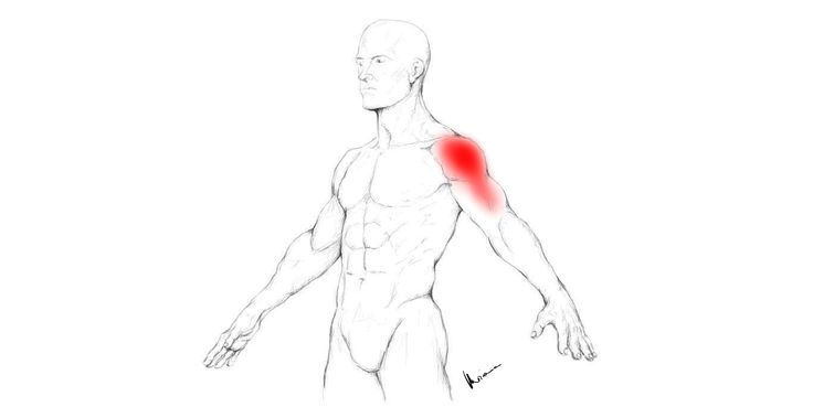 Deltoid Muscle Pain And Trigger Points