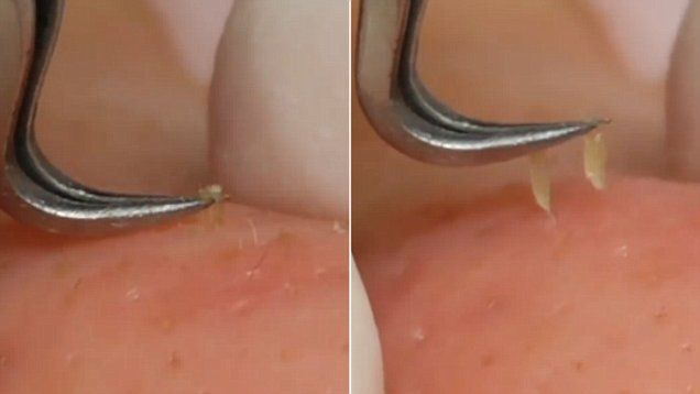 MAN, I WANT THAT TOOL! SOO COOL -NolaWest********* The new pimple popper? Taiwan beautician uses a tool to pull out several blackheads in the skin.