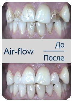 Air - flow