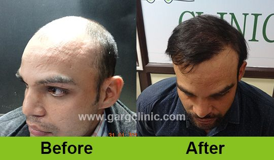 Follicular Unit extraction or FUE is one of the effective procedures to do hair transplant.   Advantages of FUE • Stitchless • No linear visible scar • No infection or reaction to sutures • The patient can wear short hair • Virtually painless Read here for more info regarding the FUE hair transplant technique: http://www.gargclinic.com/follicular-unit-extraction-or-fue/  #hairtransplant #baldness #FUEtechnique