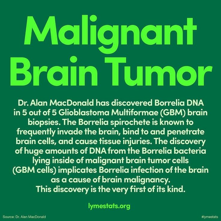 Dr. Alan MacDonald has discovered Borrelia DNA in 5 out of 5 Glioblastoma Multiformae (GBM) brain biopsies. The Borrelia spirochete is known to frequently invade the brain bind to and penetrate brain cells and cause tissue injuries. The discovery of huge amounts of DNA from the Borrelia bacteria lying inside of malignant brain tumor cells (GBM cells) implicates Borrelia infection of the brain as a cause of brain malignancy. This discovery is the very first of its kind in world literature…