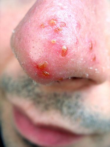 Viral skin infections - herpes.  Les infections cutanées virales - herpès.  www.canadianskin.ca/reportcard   Causes, Solutions, Cures, #herpes #shingles. Check here to learn all about it: http://cosmosale.com/herpes/