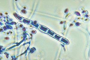 Trichophyton #Dermatophyten #Dermatophytose (Tinea) #Pilzerkrankung