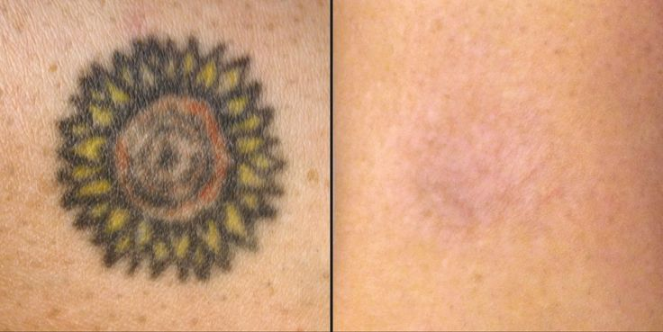 Fading tattoo with home based natural removal