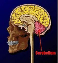 Cerebellar Ataxia Information !!  Damaged From Stroke DISCONNECT  ,                                                                                                                                                                                 More