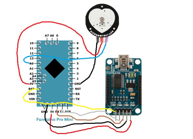 Heartbeat Monitor Project Circuit With Tachycardia Alarm Circuits