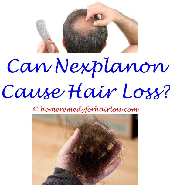 how to prevent hair loss in women naturally - what the best shampoo to use for hair loss.eggs and hair loss what to do to prevent hair loss hormone drops for hair loss 8114796112