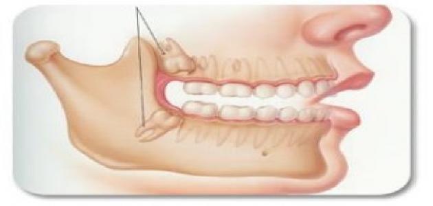 3 أطعمة عليك تناولها بعد خلع ضرس العقل في مقدمتها الآيس كريم Wisdom Teeth Teeth Sleep Eye Mask