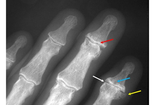 Osteoarthritis - The classic findings are joint space narrowing (white arrow), osteophyte formation (yellow arrow), subchondral sclerosis (red arrow), and subchondral cyst formation (blue arrow). The joint involvement may be very asymmetric. Soft tissue swelling due to dorsal osteophyte formation may be found around an involved joint, termed a Heberden node when around the DIP joint and a Bouchard node when around the PIP joint.