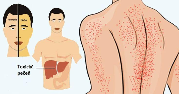 12 spôsobov, ako vám telo naznačí, že máte poškodenú pečeň