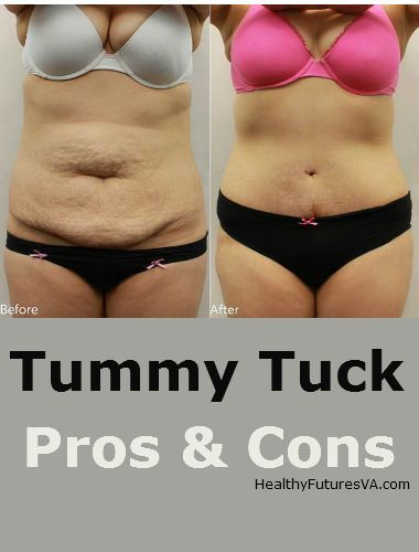Pros and Cons of Tummy tuck cosmetic surgery!Affordable weight loss solutions in Bulgaria: lipo, tummy tuck, weight loss surgery, http://www.bulgaria-medica.com/slim-weight-loss-solutions/ #Slim #bulgaria