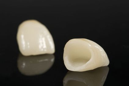 Looking for dental crowns in Rowlett TX? Make sure you go to a professional and experienced dentist only. #dentalcrownsinRowlettTX