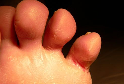 Itchy fee athletes foot on toes
