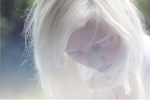 nude albino self pic