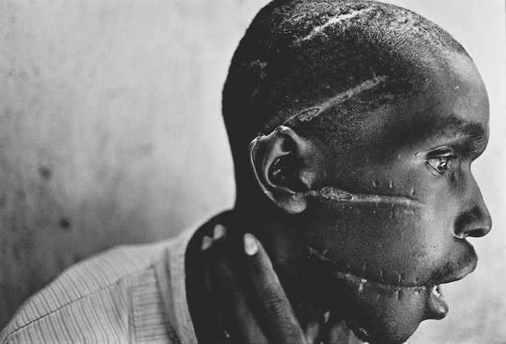 1994 - A Hutu man at a Red Cross hospital, his face mutilated by the Hutu 'Interahamwe' militia, who suspected him of sympathizing with the Tutsi rebels. (James Nachtwey)