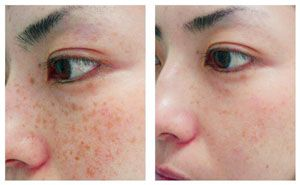 Laser Freckle Removal Before and After how to get rid of hyperpigmentation here http://meladermpigmentreducingcomplex.org/