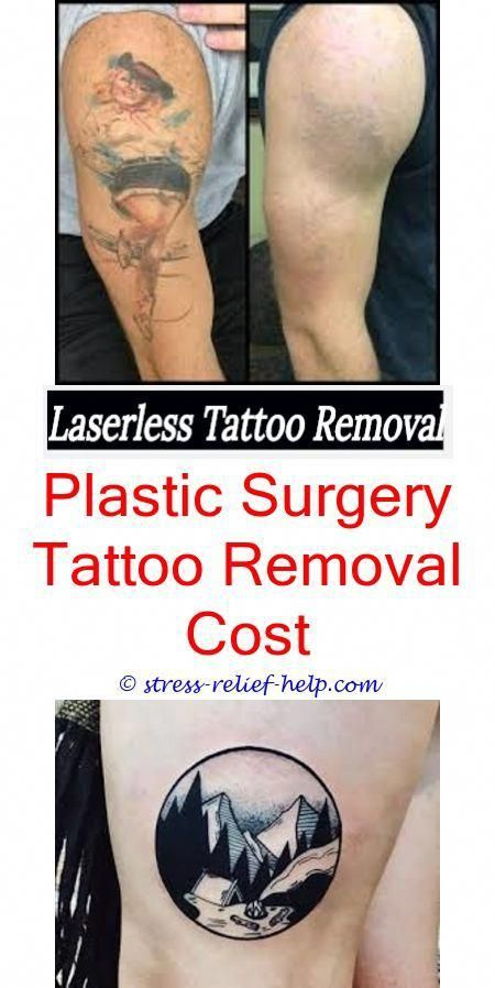 Tattoo removal dc.How to remove tattoo from body.Does tattoo removal ...