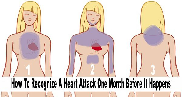 According to the latest statistics, there are more than 1 million death cases per 1 year in United States, which are caused by Cardiovascular diseases and Coronary artery disease – CAD, which can cause a heart attacks. Heart attacks is the most common cardiovascular disease. The heart attack usually happens when there isn't any blood…