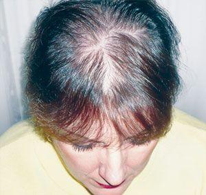 Laser rangsang pertumbuhan rambut