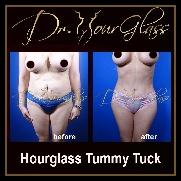 Do you find it really hard to make your tummy area fit and firm by just exercising? Well, nothing wrong in regularly doing some exercises but you can have another option that is really effective and doesn't require a lot of sweating out. The Hourglass Tummy Tuck procedure is an option you can choose to eliminate loose skin and unwanted fats around your belly. This method will also transform your body into an ideal feminine shape which is an hourglass shape.