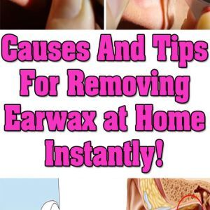 Earwax is yellow waxy substance that is secreted as protective coating and it is found in the passage of the outer ear. The earwax protects the ear from bacteria and other particles or organisms th…