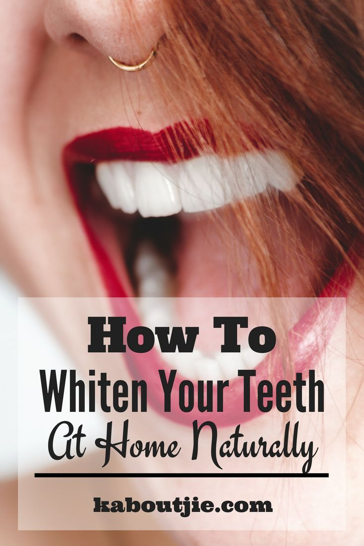 How To Whiten Your Teeth At Home Naturally    There are many things that contribute to your teeth not looking very white anymore and while you can go to the dentist and have your teeth whitened there are actually many ways to do it yourself at home. Here's how to whiten your teeth at home naturally for a fraction of the price.    #whitenteeth #naturalteethwhitening #whitenteethnaturally