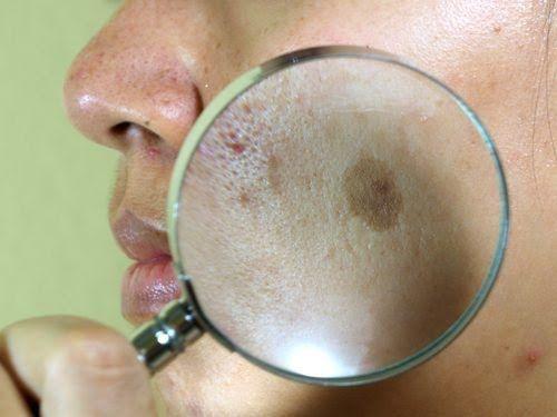 O melasma é uma condição da pele mais frequente nas mulheres,já que está relacionado aos hormônios femininos. Saiba como combatê-lo naturalmente.