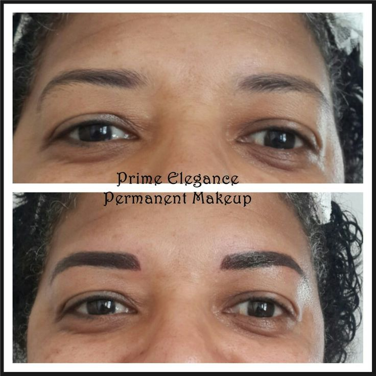 Machine/powder brows immediately after the first procedure. After the first treatment, the colour will appear darker and bolder than what is expected at the final outcome. The shape may also appear thicker than what is expected for the final outcome. This is a two stage process and with healing the colour and shape will soften and fade. A touch up is necessary to perfect the process. At the touchup, we can decide to go darker and perfect the shape.