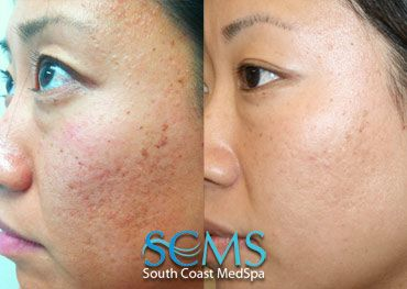 Actual SCMS patient - Laser Acne Scar Removal - Asian Patient - Treatment still in progress, but already great results!