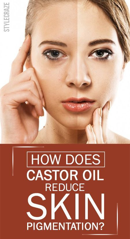 Have you ever used castor oil for pigmentation? Want to know how to use castor oil to get rid of pigmentation? Then you got to read this post to know all about