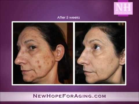 Amazing Before and After Photos of Anti-Aging with Adult Stem Cells | NewHopeForAging.info