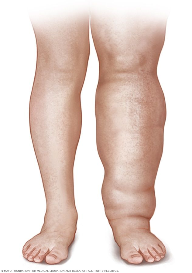 7083775193d53 Illustration of a person with leg lymphedema | LYMPHEDEMA | Lymph ...