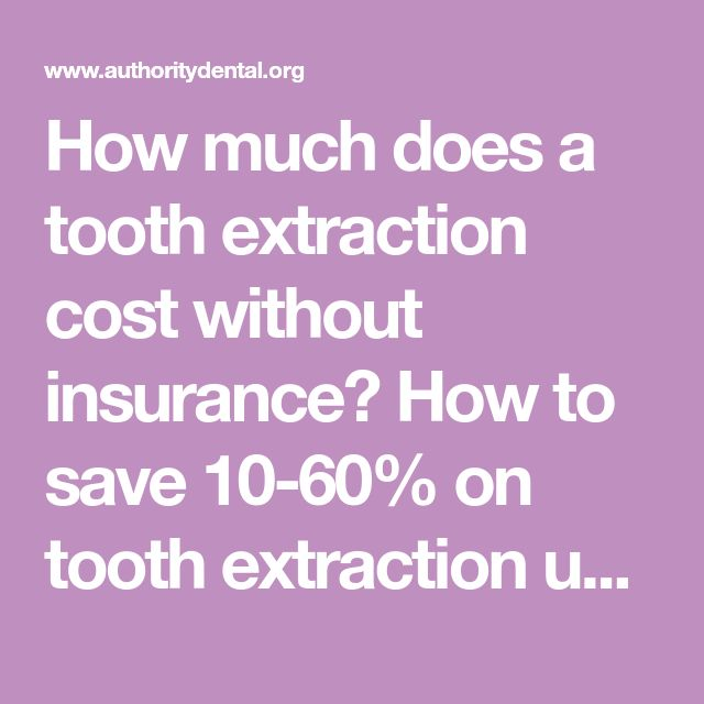 How Much Does A Tooth Extraction Cost Without Insurance