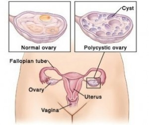 Effective Treatment for Polycystic Ovarian syndrom   #preparedness #homeremedies
